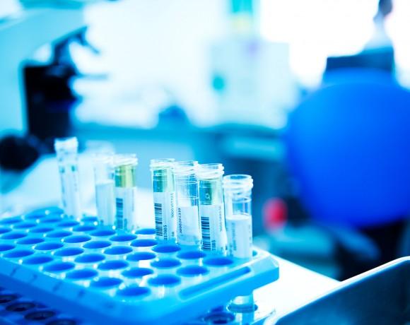 Cinética y aplicaciones de las enzimas oxidorreductasas en el diseño de biosensores y procesos de interés medioambiental